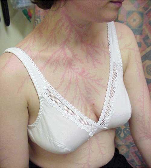 Tatuagem natural