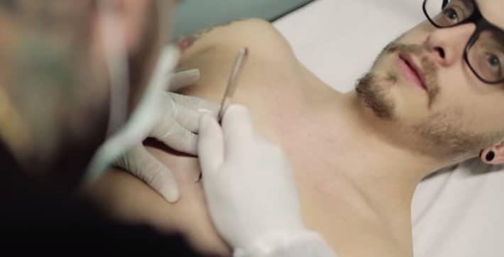 Homem implanta chip no peito
